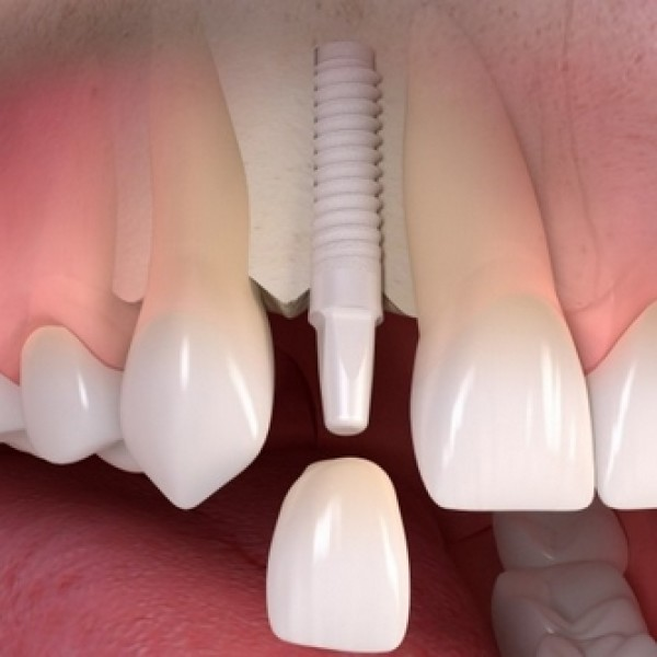 IMPLANTS ZIRCONE